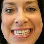 Shonda Before | Gregory Bialek Cosmetic and General Dentistry in Concord, NC