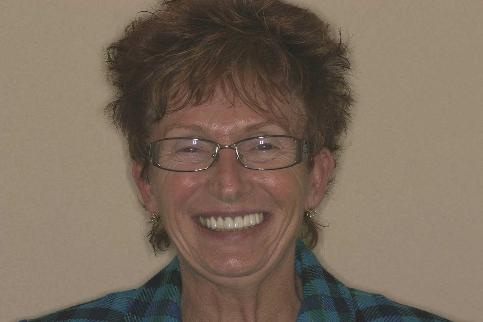 Susan, After Cosmetic Crowns & Veneers | Concord, NC