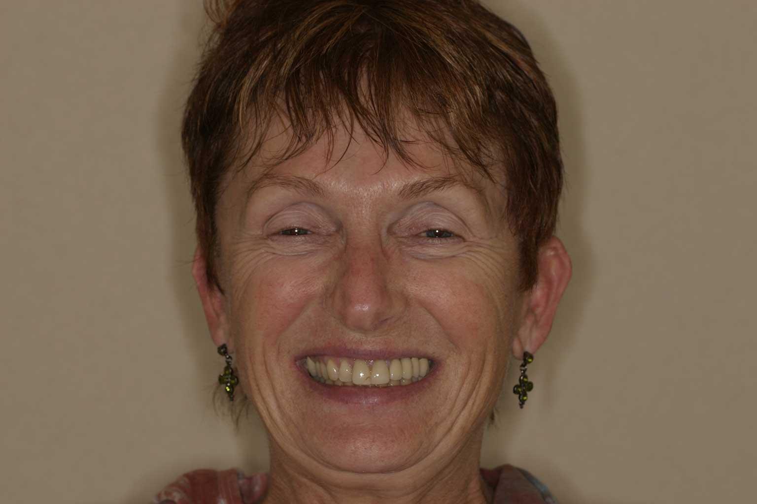 Susan, Before Cosmetic Crowns & Veneers   Concord, NC