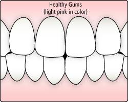 gum-disease-illustration1