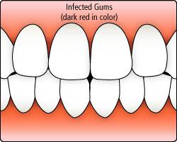 bialek-gum-disease-illustration2