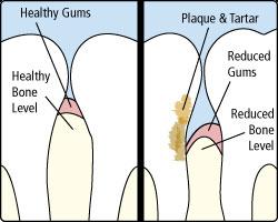 gum-disease-illustration