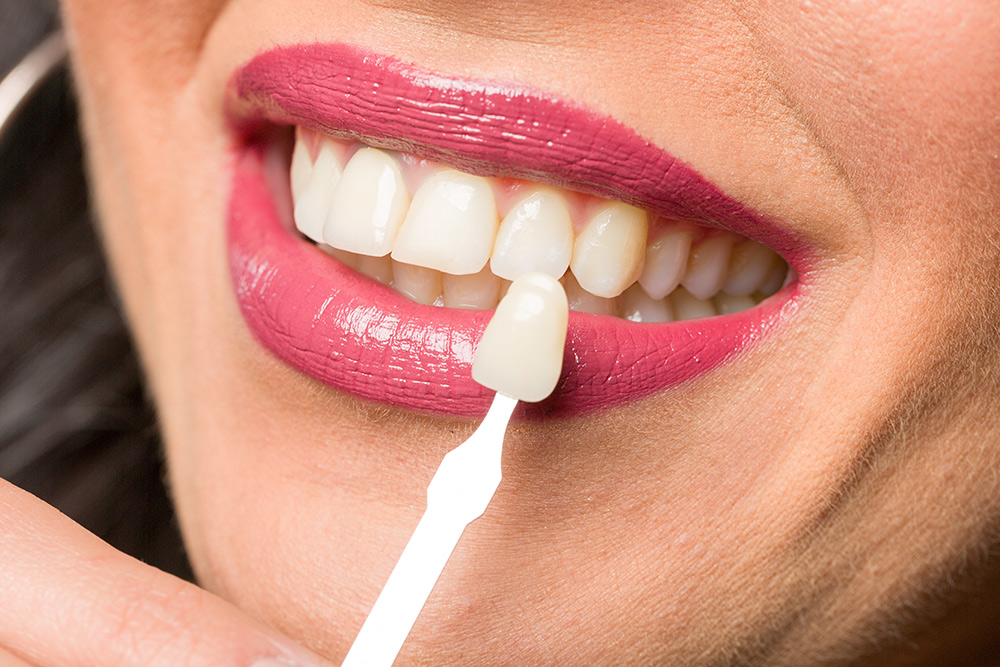 How Can Dental Veneers Benefit Me?