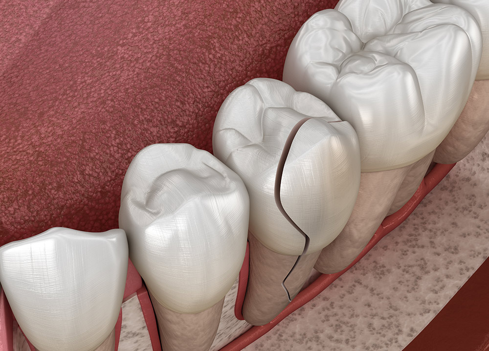 What Is Cracked Tooth Syndrome and How Is It Treated?